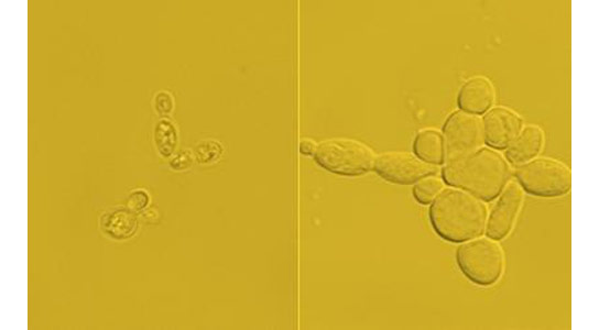Engineers Convert Yeast Cells into Biofuel