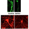 Expression of a single gene dramatically decreases synaptic connections between brain cells