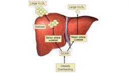 Fatty liver in obesity