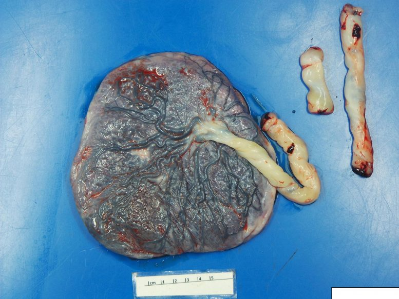 Fetal-Side COVID Impacted Placenta