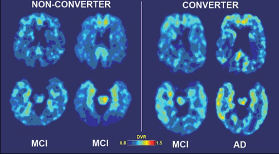 From mild cognitive impairment to Alzeimer's disease