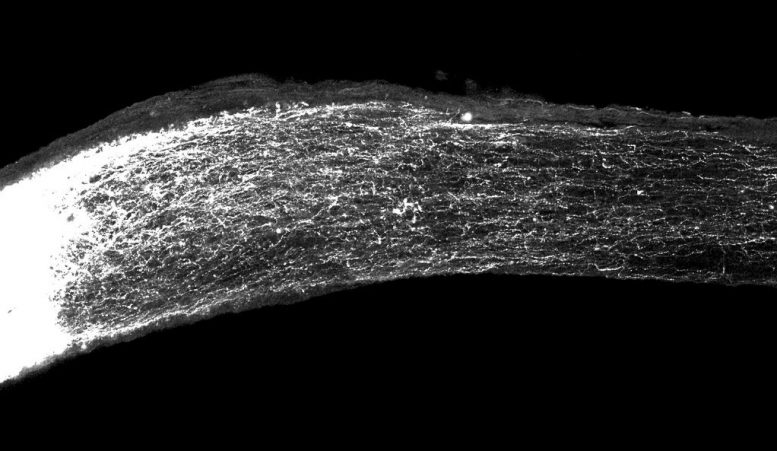 Gene Spurs Regeneration of Damaged Nerve Cells