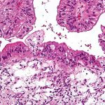 Gene Therapy Improves Survival Rates in Patients with Ovarian Cancer