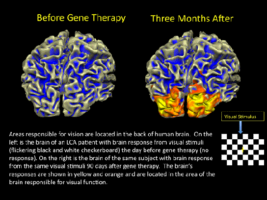 Gene therapy for congenital blindness has taken another step forward