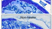 Genes promote cartilage healing and protect against arthritis