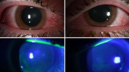 Germicidal Lamps May Damage Corneas