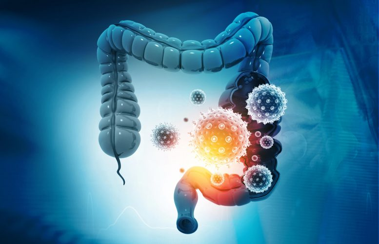 Microbiome impacts COVID-19 severity and duration, study suggests