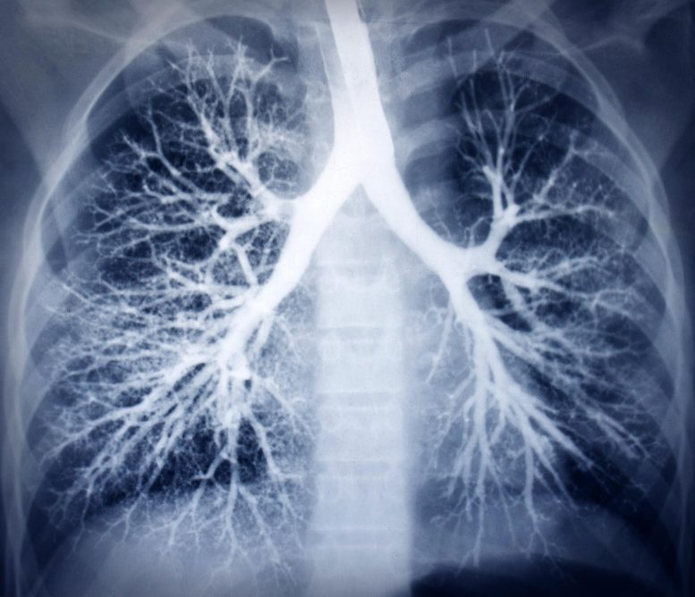 Healthy Lung Scan