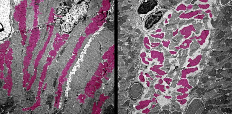 Heart Muscle Cells COVID