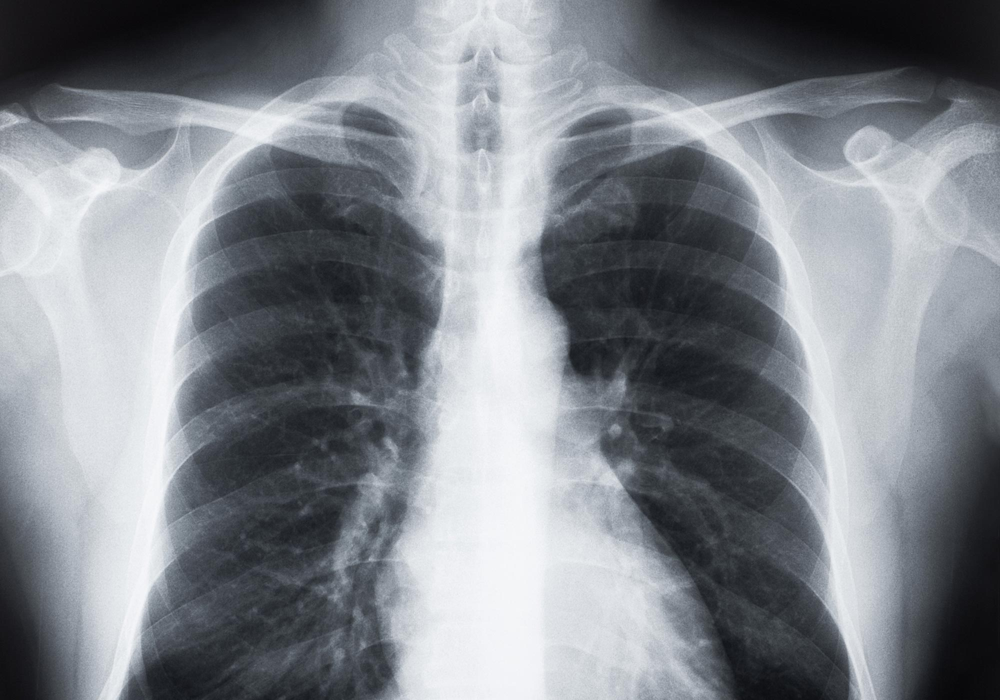 E-Cigarette User Found to Have Rare Form of Lung Scarring Typically Found in Metal Workers