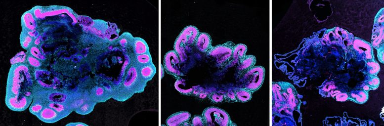 Human, Gorilla and Chimpanzee Brain Organoids
