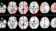 Imaging Data From Two Youth Football Athletes Crop