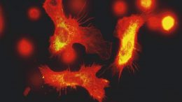 Immune Cells Fluorescence Microscopy