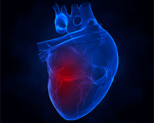 Key factors linked to lower death rates among patients with heart attacks
