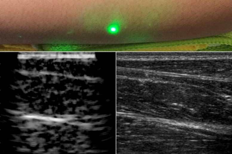 Laser Ultrasound Images of Humans