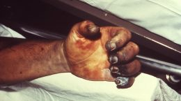 Left Hand of Plague Victim