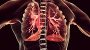 Lung Infection Illustration