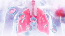 Lung Inflammation Illustration