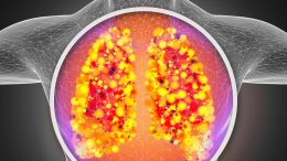 Lungs Respiratory System Infection