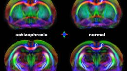 MRI Detects Early Signs of Schizophrenia