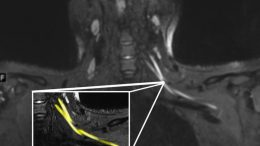 MRI Shows COVID-19 Nerve Damage in Neck