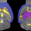MRI data compares effects of drinking ethanol and water on brain volume