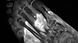 MRI of Foot Post COVID
