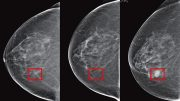 Machine Learning Predict Cancer Risk From Mammogram Images
