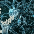 A Major Step Toward an Alzheimers Vaccine