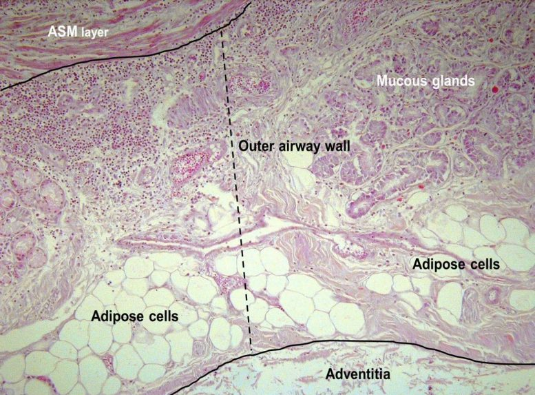 Micrographs Fat Tissue in Lungs
