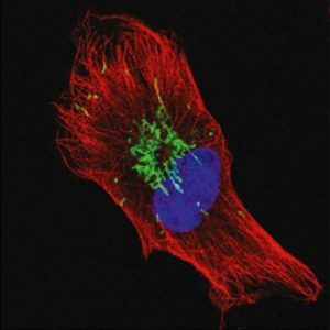 Mitochondria Come Together to Kill Cancer Cells