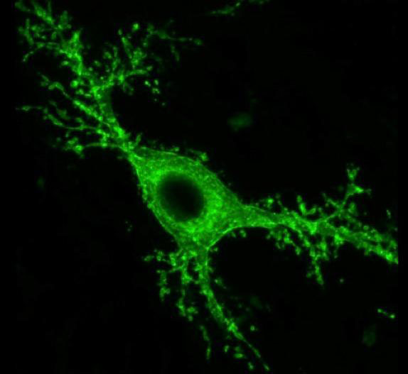 Mossy Brain Cells Linked to Seizures and Memory Loss