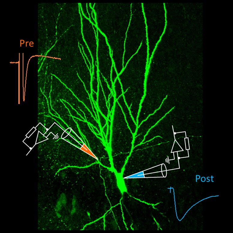 Mossy Fiber Synapse in Hippocampus