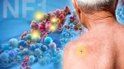 NF1 Identified as Major Player in Skin Caner Genes