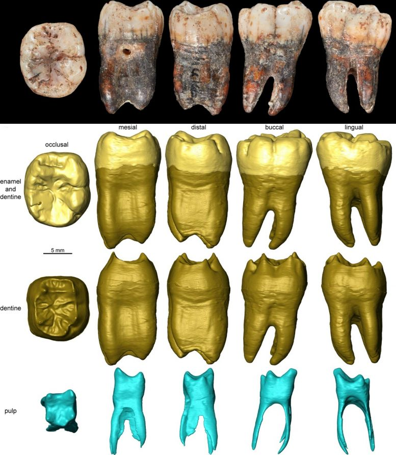 Neanderthal Tooth