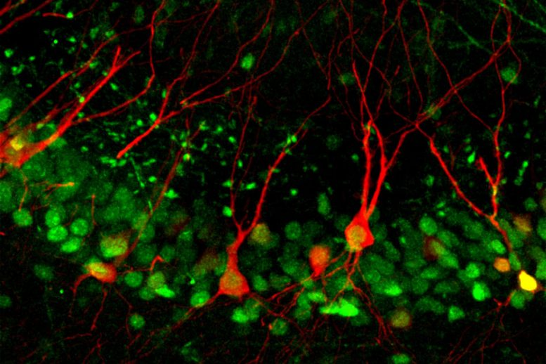 Neuroscientists Discover a Cellular Pathway That Encodes Memories