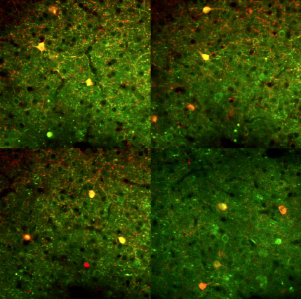 Neuroscientists Reveal Fundamental Discovery about Cortical Neurons