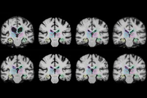 New Algorithm Faster Analysis of Medical Images