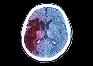 New Drug Significantly Cuts Mortality Rate After Stroke