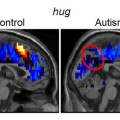 New Findings Identify Altered Thought-Markers of Autism