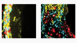 New Findings Shed Light Atherosclerosis