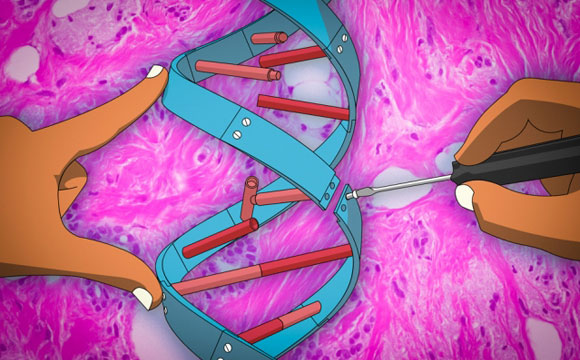 New Gene Therapy Technique May Help Prevent Cancer Metastasis