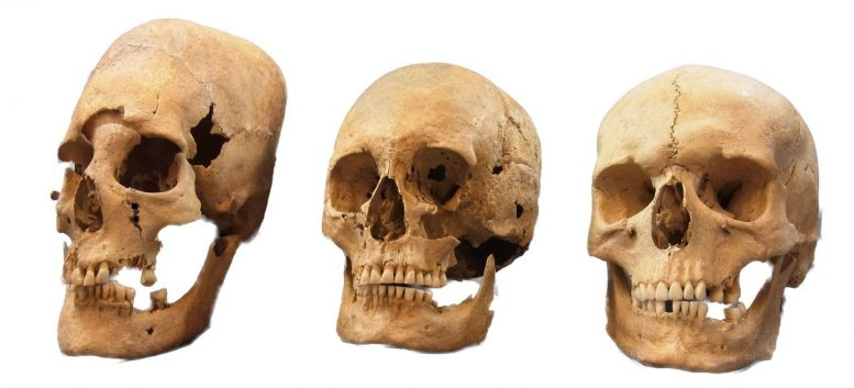 New Insights Into the Origin of Elongated Skulls