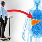 New Link between Obesity and a Common Liver Disease Discovered