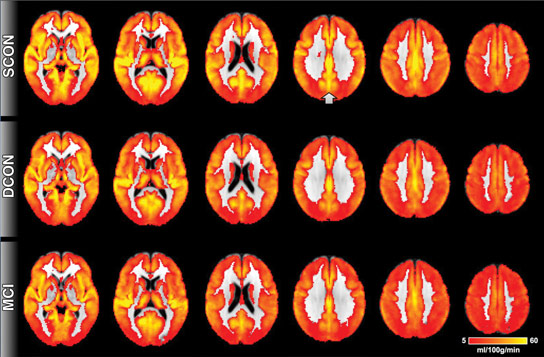 New MRI Technique Detects Evidence of Cognitive Decline