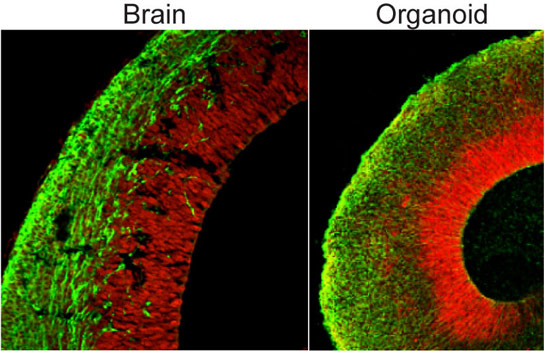 New Method Allows Pluripotent Stem Cells to Develop into Cerebral Organoids
