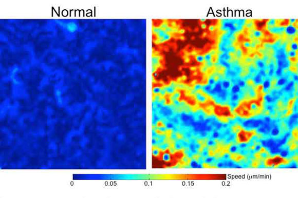 New Research Offers Insight into Mechanisms of Asthma and Other Diseases
