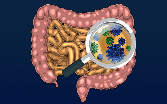 New Research Reveals How Altered Gut Microbes Cause Obesity