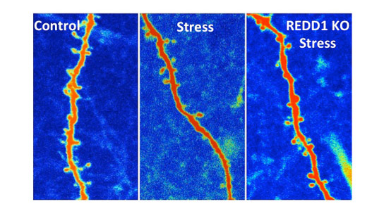 New Research Reveals How to Block Stress Damage