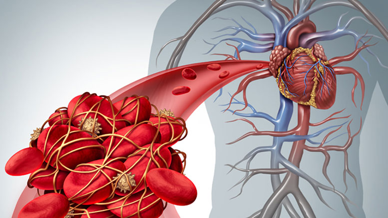 New Study Probes Link Between Common Clotting Conditions